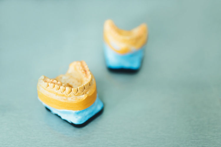 Dental Health Dental Dentures Dentistry Health Care Gypsum Model Dental Care Teeth Model Tooth Jaw