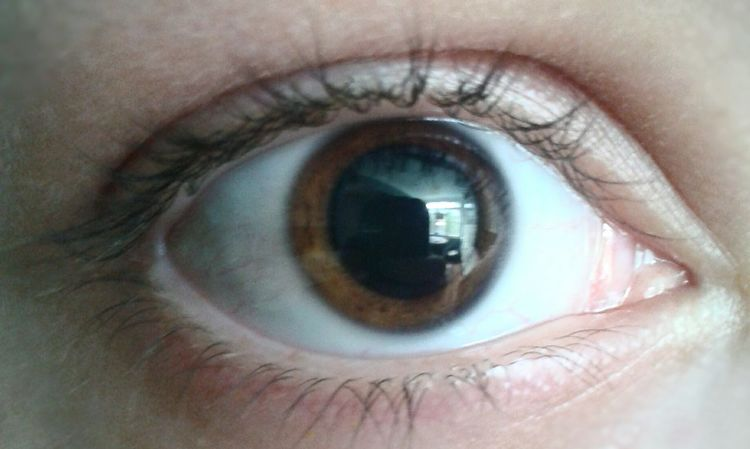 A wonderful visit to the eye doctor Dilated Eyes Eyes That's Me Follow Me