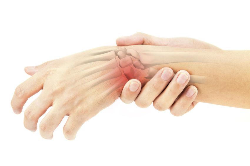 wrist bones injury Pisiform Wrist Carpal Metacarpals Phalanges Forearm Chronic  Pain Arthritis Rheumatoid Bones Sprain Cramp Disease Feeble Healthcare Inflame Swell Numbness Office Syndrome Rheumatism Motion Injury X-Ray Calcium Rickets