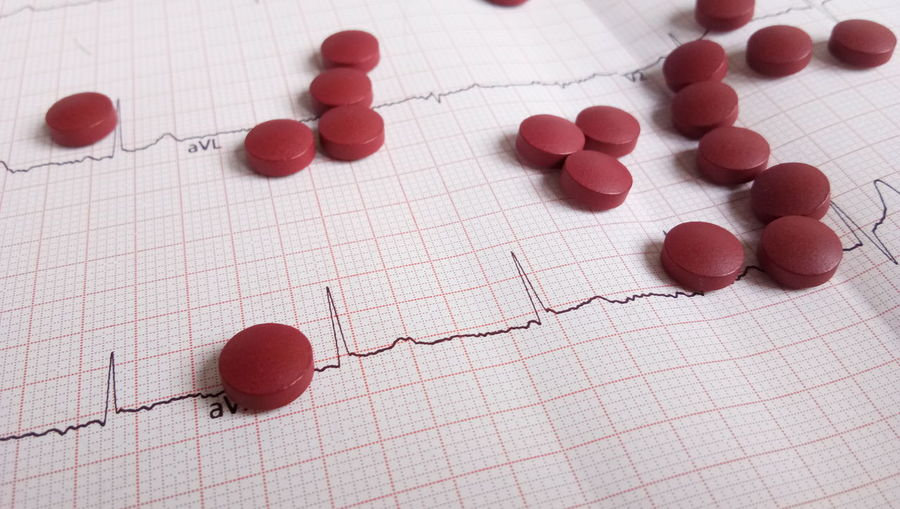 ECG Ekg Care Life Heart EyeEm Selects Red High Angle View Indoors  Close-up No People Food Day