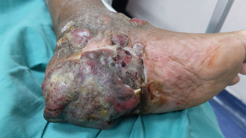 Squamous cell carcinoma of the foot Cancer Squamous Cell Cancer Surgery Orthopaedic Diagnosis Pathology  Radiotherapy Amputation Skin Cancer Hygene Biopsy