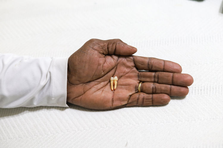 A black african-american man holding a loose tooth in his hand