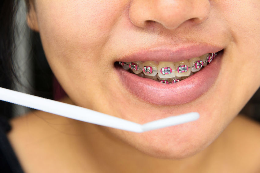 girl smiling with braces,dental concept Dental Dental Hygiene Dentist Dentistry Adult Adults Only Beautiful Woman Braces Braces Smile Close-up Day Dental Care Dental Clinic Dental Equipment Dental Health Dentist Tools Human Body Part Human Lips Indoors  One Person People Real People Young Adult