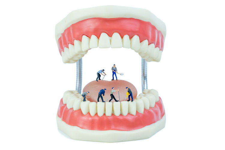 miniature people and dental model object,dental care concept Dental Dentist Hospital Hygiene Mouth Teamwork Concept Dental Health Figurine  Gum Miniature People Oral, Patient Teeth Tool Tooth Treatment White Background