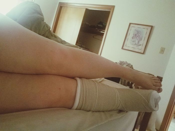 Broke my ankle two days ago. First broken bone ever...UGH!!! Broken Ankle