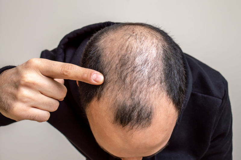 Close-up of man pointing at receding hairline against beige background
