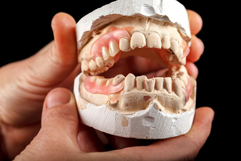 A denture on a gypsum base in the hand of a on a black background Dental Animal Teeth Black Background Body Part Close-up Dentalcare Dentalequipment Education Finger Hand Healthcare And Medicine Healthcareandmedicine Holding Human Body Part Human Finger Human Hand Human Teeth Indoors  Learning Model - Object One Person Orthodontic Removable Science Studio Shot Tooth Unrecognizable Person