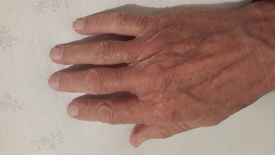 Human Body Part One Person Olddoctor Doctorshand Doctor Surgery  Age89
