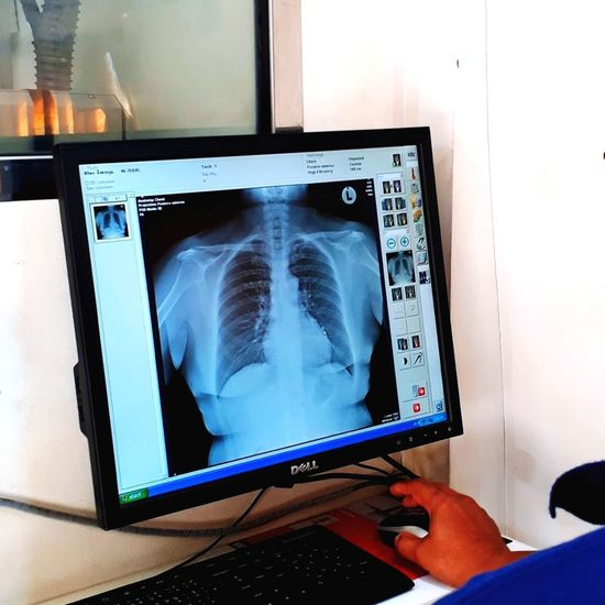 X-rays to see lung disorders. Hospital Technology Tomography Medical Exam Occupation Human Bone Healthcare And Medicine Mri Scan Medical Clinic Working Radiologist Human Brain Medical X-ray Cancer - Illness Human Internal Organ Anatomy Medical Test Fracture X-ray Image Human Skeleton Human Skull Diagnostic Medical Tool Dentist Bone  Dental Equipment Dentist's Office
