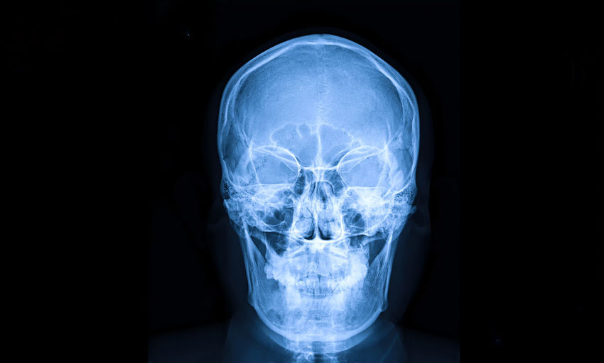 Medical x-ray of human head against black background
