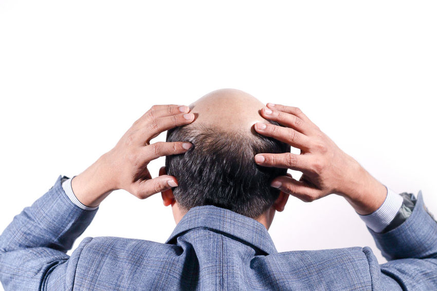 bald businessman with his head on scalp view from behind with white background 30s, 35-40, Adult, Aging, Alopecia, Back, Background, Bald, Baldness, Businessman, Close-up, Completely, Cosmetic, Hair, Hair Transplant, Hair Weaving, Hairfall, Hairline, Hairloss, Hairstyle, Head, Healthcare, Human, Isolated, Loss, Male, Man, Mature, Me Business Isolated Allopecia Anxiety  Back Of The Head Body Part Body Part, Hair Style Hairfall Headshot Indoors  Male Patterned Baldness Males  Men Studio Shot White Background White Backround