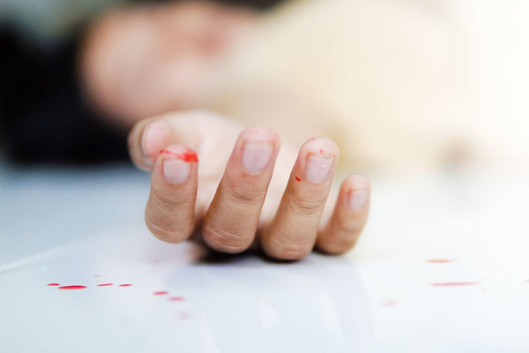 Close-up of person with wounded hand lying on floor