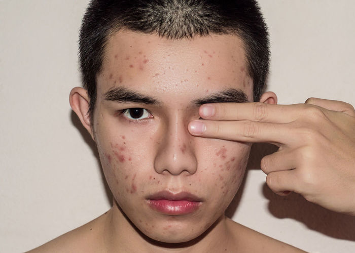 Close-up portrait of young man with acne against beige background