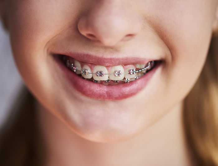 Close-up of smiling girl wearing braces
