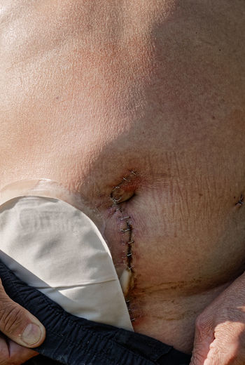 Adult caucasian man with temporary stoma after bowel surgery Cancer Healthcare Medical Equipment Medicine Pain Stomach Abdomen Accident Bowel Bowel Surgery Cancer Patient Close Up Close-up Closeup Health Care Hurt Incidental People Injury Medical Medical Stitch Painful Patient Recovery Stitch Surgery