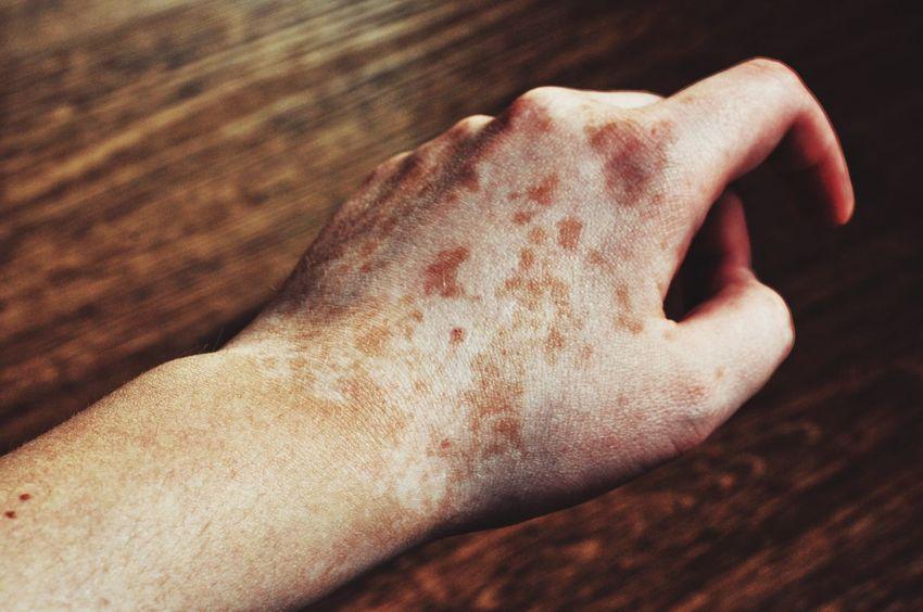 Skin Vitiligo Human Body Part Human Hand