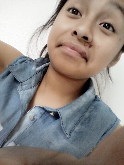 Ehh My Lip Looks Ugly But I Dont Care^_^