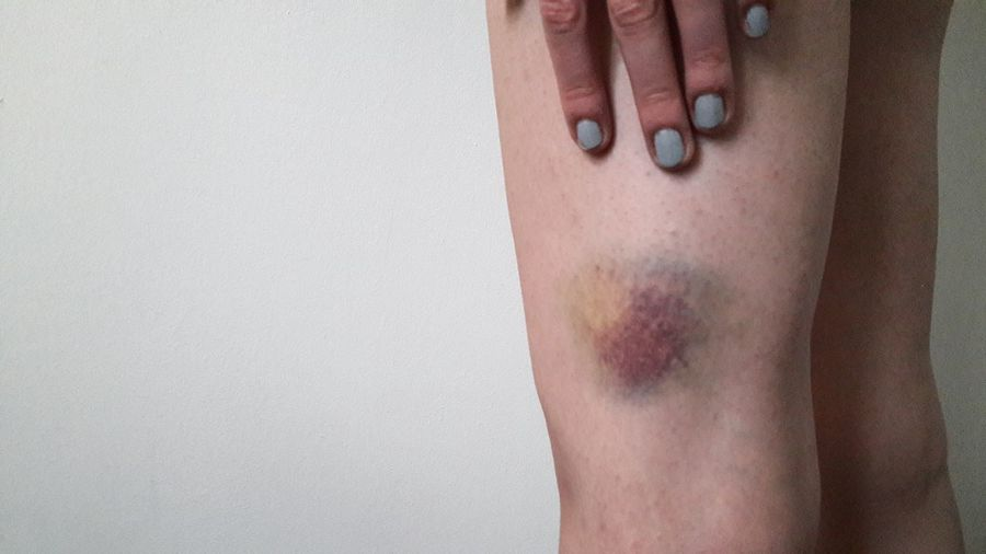 Midsection of woman with bruised leg against wall