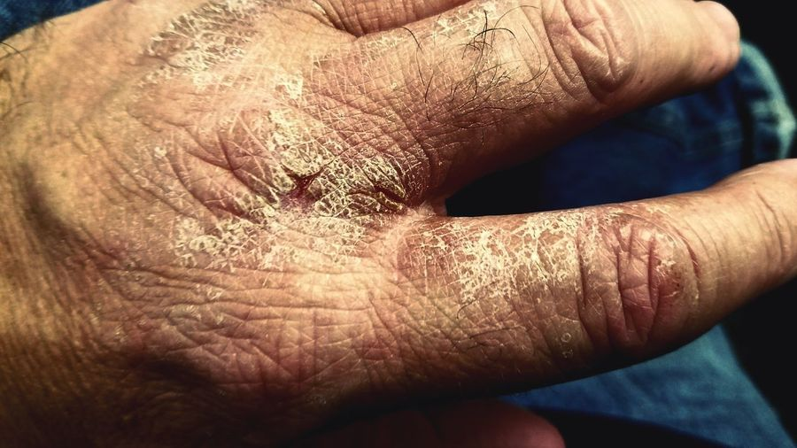 Human Body Part Human Hand Close-up One Person Human Skin Ouch Why Itching Irritation Anxiety Disorder Anxietyattacks New Lefthand Stressed Out... Splitting Helpme Men Indoors  Day Adult Bodyart Sitting Cracking Surfaces Scabby