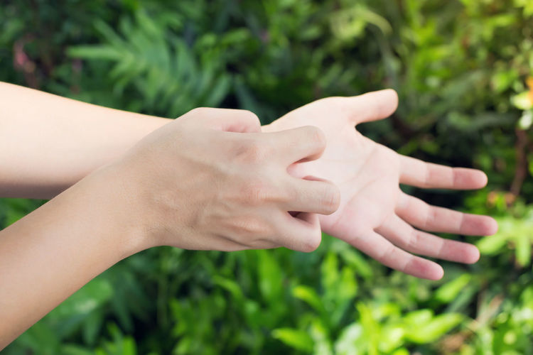 Cropped image of woman scratching hands