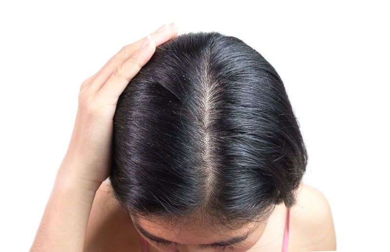 women head with dandruff Caused by the problem of dirty. Or caused by skin disease or Seborrheic Dermatitis. It has white scaly and it will cause itch. Dandruff Headshot Hair Scalp Psoriasis White Background Young Female Seborrhea People person Health Care Skin Dirty Sickness Scaly Discomfort Woman Girl Greasy Through Caucasian Shampoo Medical Dry Problem Stress Backgrounds Itch Black Human Body Part Hand Illness Disease Flakes Medication Trouble Fungus Misfortune Hormonal Secretions Annoying Magnifying  Scratch Rod Tinea Pellionella Studio Shot One Person Close-up Body Part Human Hand Lifestyles