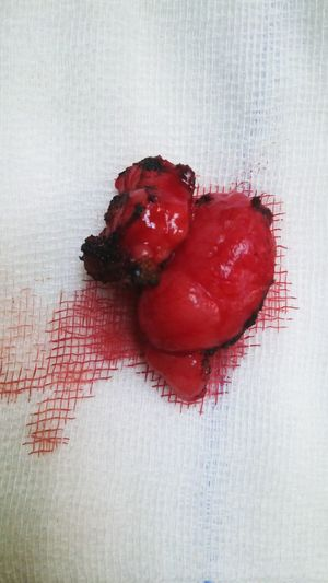 Successful surgery. Heart Shape Red Triplets Lazer Nopain Close-up