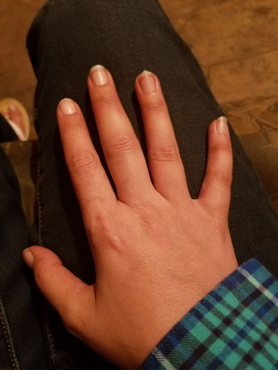 """""""Jammed"""" middle finger! This injury hurts, and the swelling is just starting! Skin Tone Middle Finger Swelling Joint Pain Knuckle Jammed My Fingers Jammed Finger  Blue Color Jeans Hand Hand On Knee Summer Tan Injured Hand Injury Injured EyeEm Selects Body Part Hand Skin Finger Personal Perspective Human Finger Fingernail Joint - Body Part Thigh Knee Low Section Wrist"""