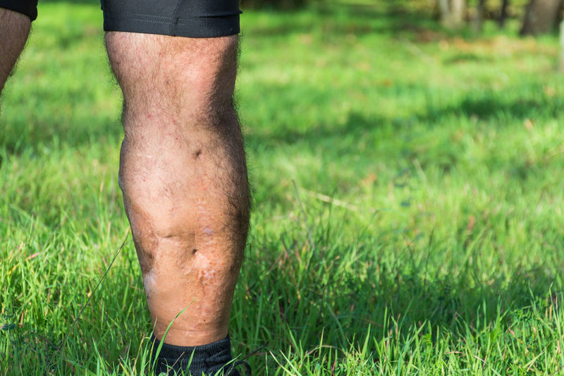 Man with knee injury standing on grass
