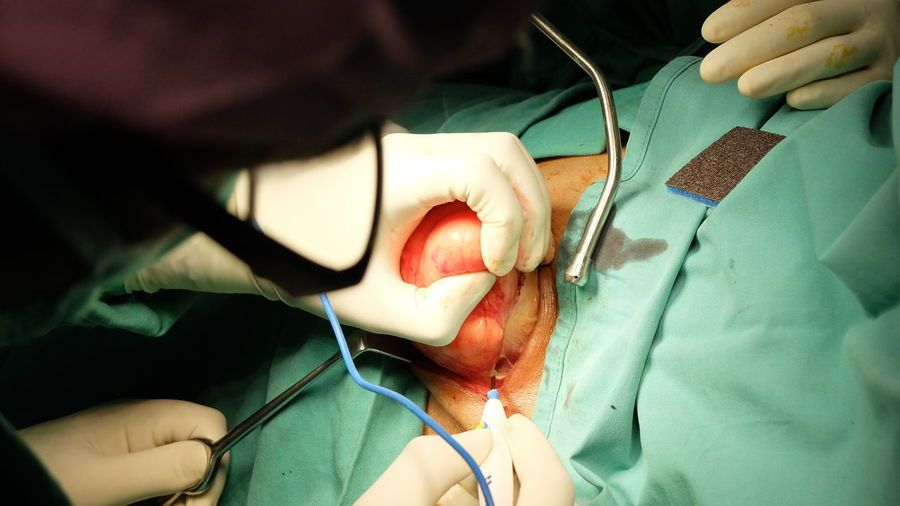 Midsection of surgeons performing operation on patient