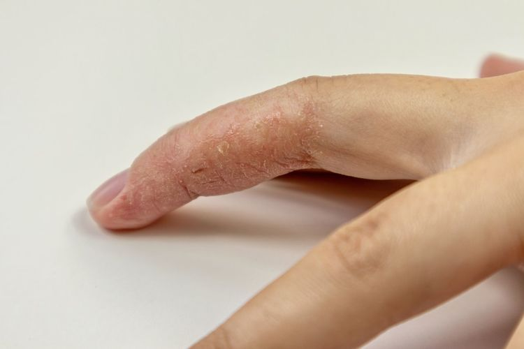 dry itchy cracked skin on finger Human Hand Hand Human Body Part Body Part Indoors  One Person Close-up Studio Shot Finger Human Finger Limb Skin Human Skin Real People Human Limb White Background Healthcare And Medicine Selective Focus Unrecognizable Person Human Foot Eczema Itchy Dermology Psoriasis Dry Skin Skin Disease
