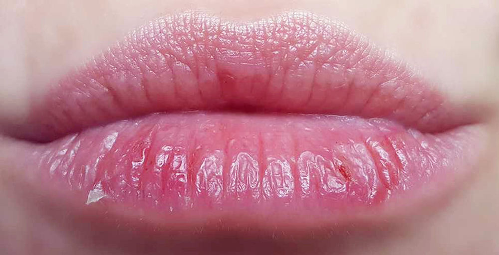 Kisses My Wounds Human Lips Human Body Part Lipstick Make-up Adult Beauty Product Beauty Lip Gloss Close-up People Human Face Women Only Women One Woman Only One Person Indoors  Adults Only Young Women Young Adult Day