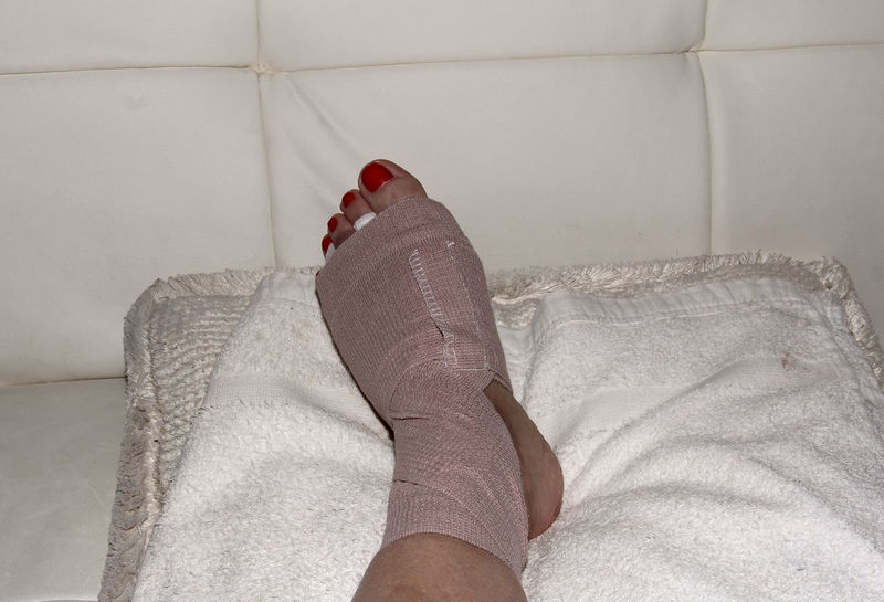 Foot after Morton's neuroma surgery between the second and third toe. After surgery, the bruised foot is wrapped and then placed in a protective boot. Bruise Bruising Doctor  Foot Foot Surgery Medical Morton's Morton's Neuroma Nerve Neuroma Surgery
