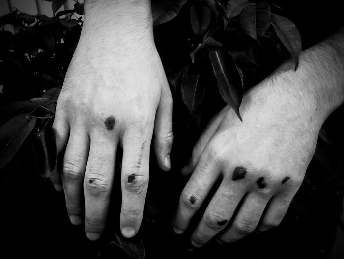 Human Hand Hands Wounds Fingers Broken Blackandwhite Black And White Pain Grim One Person Dark Human Finger