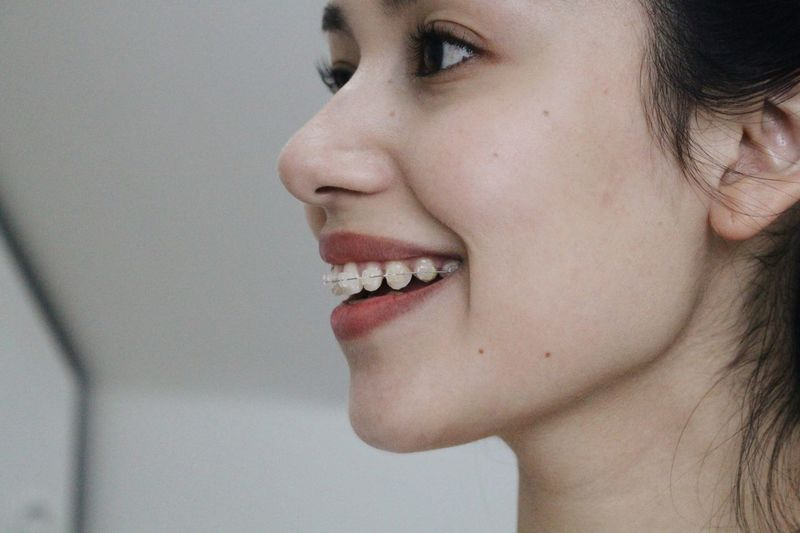 Close-up of smiling woman with braces