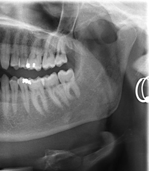 Close-up Dental Ear Rings Jolly Roger Healthcare And Medicine Human Body Part One Person Pirate See Through Teeth That's Me X Ray Vision
