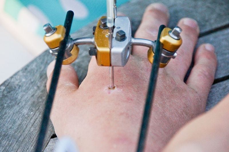 Cropped image of hand with external fixation