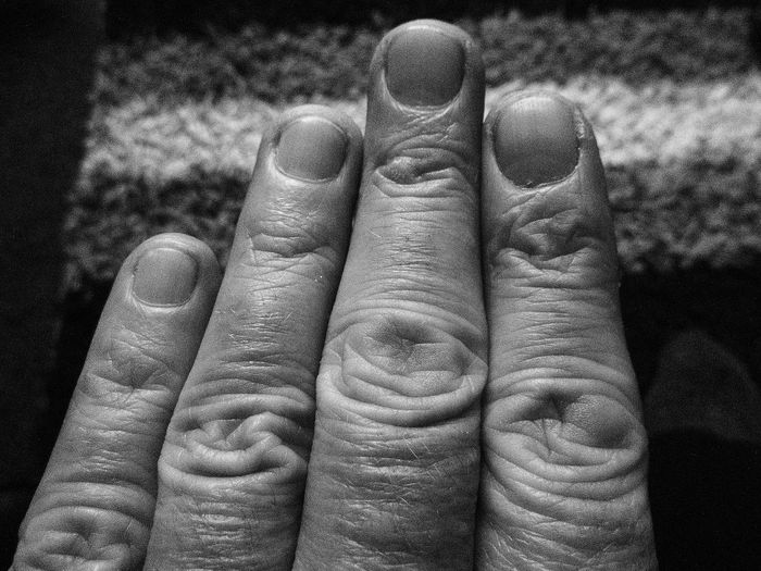 This Is My Skin All My Own Work Black And White Photography Digital Digits For Snappin Photos Fingers Knuckles No Edit/no Filter Patterns In The Fingers Unique To Me This Is My Skin