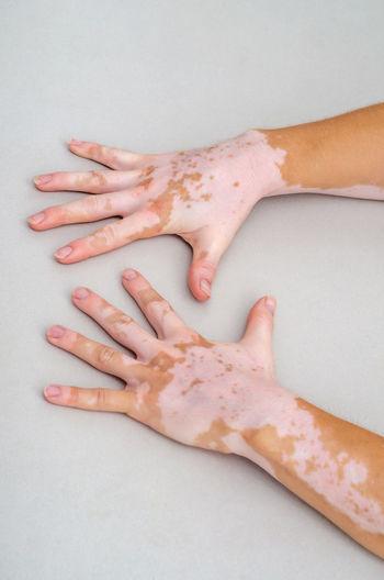 Vitiligo on