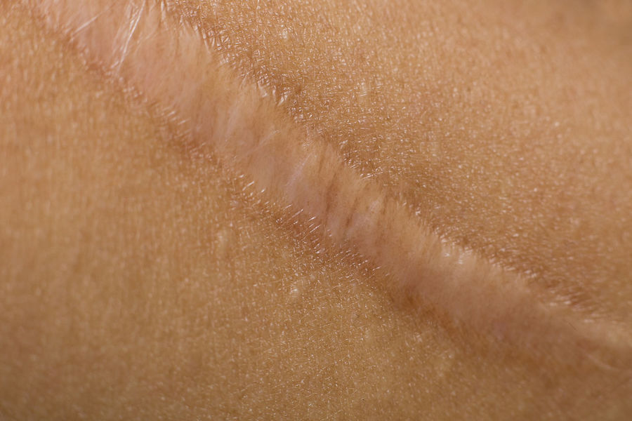 A Keloid on skin Body closeup image Body & Fitness Medicine Pain Close-up Healthy Keloid Scab Scar Skin Surgery Wound