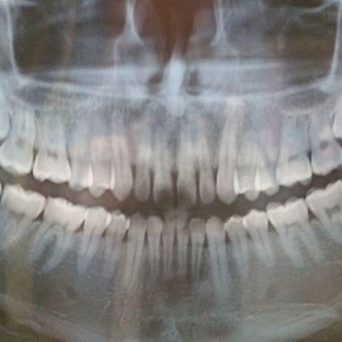 Just had an xray. Teeth look wierd Xray Teeth Wisdomteeth Swag Cleanteeth