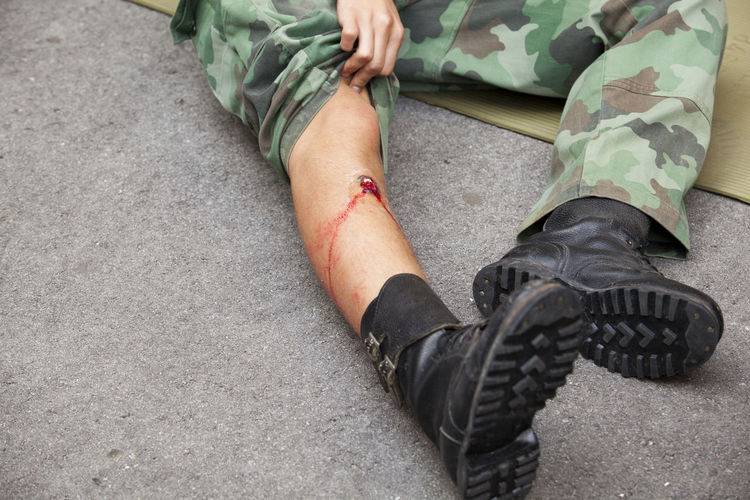 Low Section Of Army Soldier With Injury On Road