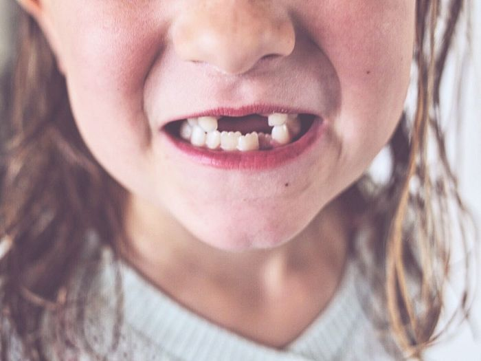 Child Childhood Face Faces Of EyeEm Missing Teeth Missing Toothy Smile Tooth Dentist Dentist Time Six Years Girlpower Girl Girl Power Mouth Mouth Open