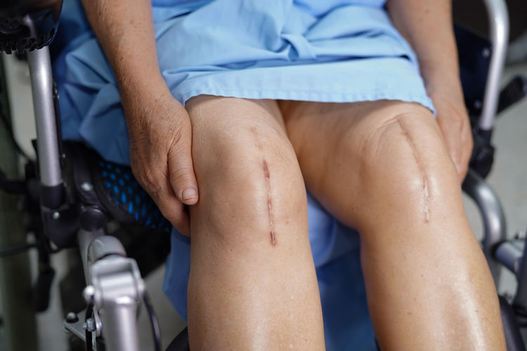 Midsection of man with knee surgery sitting on wheelchair