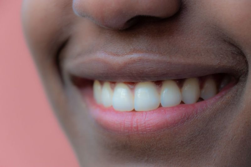 Smile Smiling Women Young Women Human Body Part Close-up Body Part One Person Smiling Human Lips Human Teeth Human Face Real People Happiness Teeth Human Mouth Emotion Dental Health Toothy Smile Human Skin Skin Front View Mouth Open This Is My Skin