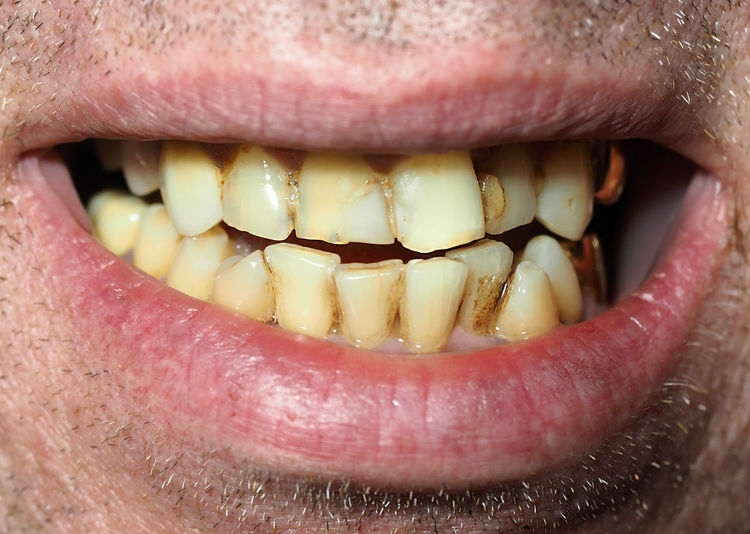 Medicine Smoky Caries Close-up Dantist Day Dental Health Dentist Happiness Healt Food Healthy Human Body Part Human Face Human Lips Human Mouth Human Teeth Human Tongue Mouth Open One Man Only One Person People Sticking Out Tongue