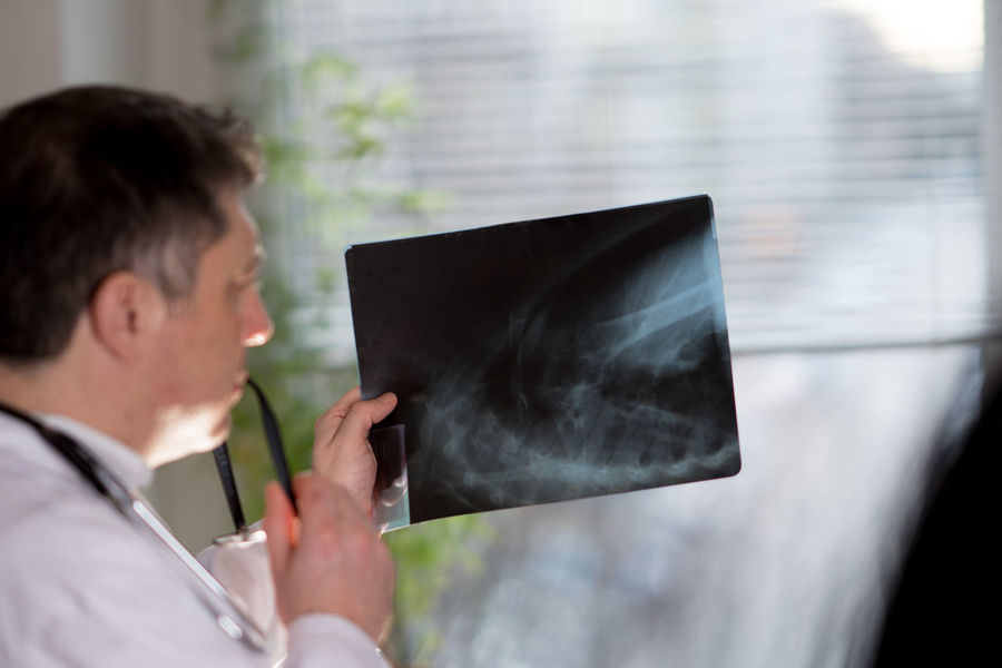 Doctor wearing a white lab coat examining X-ray images Broken Bones Diagnosis Doctor  Hospital Medicine Result Working X Rays X-Rays X-ray Image Xray Xray View Clinic Diagnostic Indoors  Looking Medical One Person Radiology Real People Rehabilitation X Ray X Ray Technology X-Ray Xrays