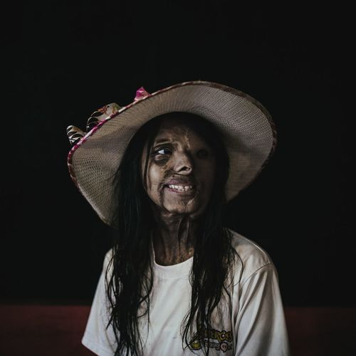 """The Photojournalist - 2016 EyeEm Awards Shaboo faced an acid attack when she was just one month old resting on her mother's lap. She is still unaware of the reason… the question """"why?"""" remains unanswered. The attack killed her mother and sentenced her father to jail. Her brother was adopted by an aunt, who refused to take Shaboo in because of the stigma associated with victims of acid attacks. Shaboo was adopted by an orphanage Ashram in Mumbai, where she received the emotional and financial support to graduate college. """"It is very difficult to live in an orphanage,"""" Shaboo says. The Photojournalist 2016 Finalists"""