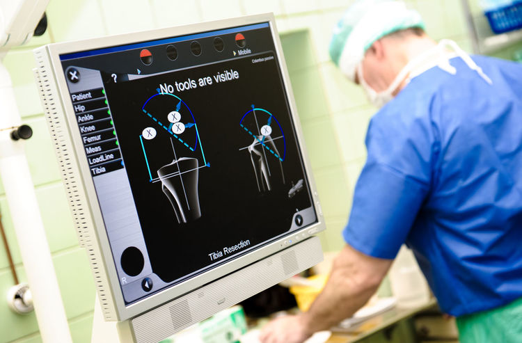 Medical orthopaedic equipment navigation system and surgeon on background at hospital Diagnosis Doctor  Emergency Hospital Medical Equipment Medicine Screen Surgeon Surgical Clinic Computer Monitor Equipment Healthcare And Medicine Hospital Medical Medical Research Monitor One Person Orthopaedic Orthopedic Equipment Orthopedics Scan Scanner  Surgery Surgical Equipment