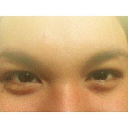 The eye is the window to your soul. Eyebags