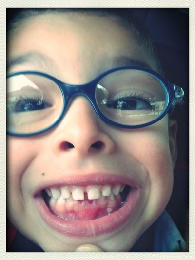 Andre cai mais um dente...